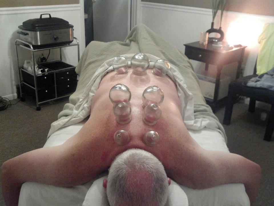 man receiving cupping session, with glass cups applied to his back
